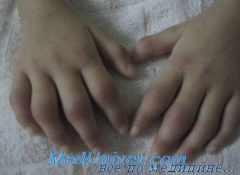 Аналізи при ювенільному ревматоїдному артриті у дітей