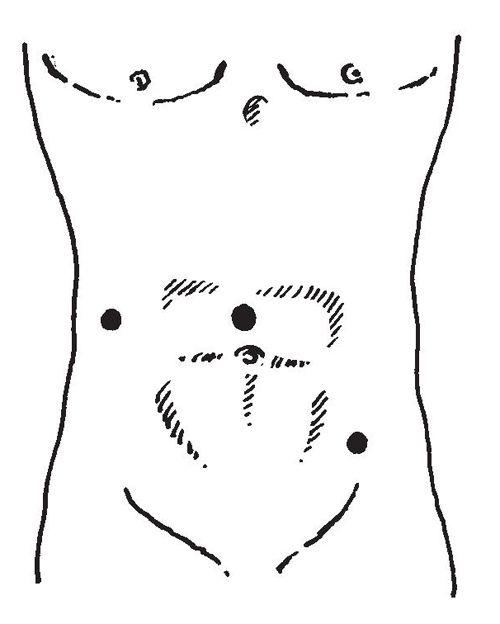 Гіпофіз (вид зверху)