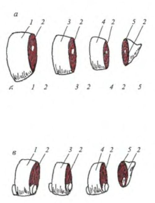 Розташування вірсунгова протоки в тканини підшлункової залози