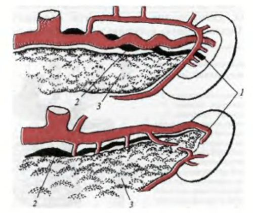 Варіанти селезінкових артерій і вени по відношенню до верхнього краю підшлункової залози (вид спереду)