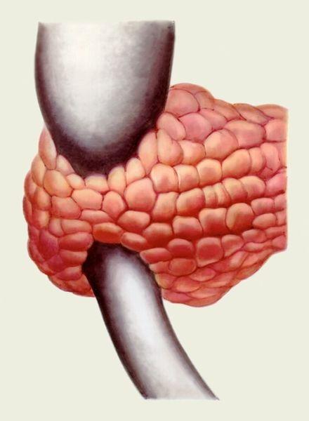 Аномалії підшлункової залози