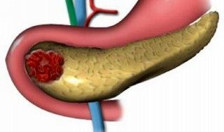 асептичний панкреонекроз
