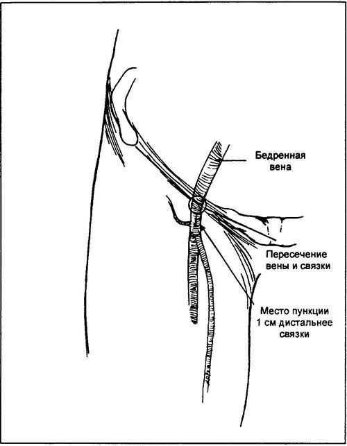 Приєднайте пункційну голку 18 калібру до 5 мл шприца, проколіть анестезированного шкіру і, аспіріруя, просуньте голку в краніальному напрямку під кутом 45 ° до поверхні шкіри паралельно пульсуючою артерії. Ризик при медіальному підході до вені менше в порівнянні з латеральним