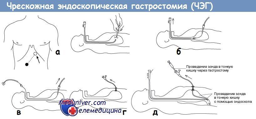 Черезшкірна ендоскопічна гастростомія (ЧЕГ)