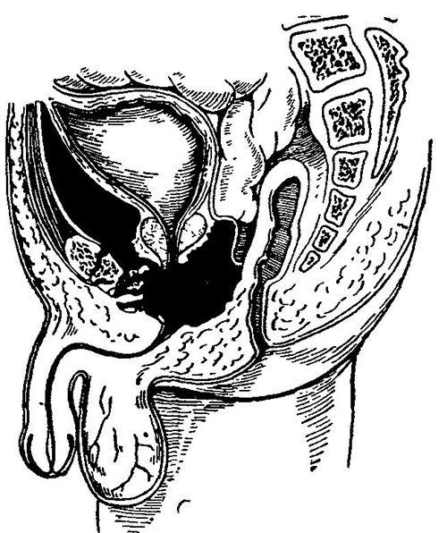 Гематома при пораненні уретри
