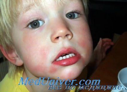 Десенсибілізація при алергіях. Показання і протипоказання