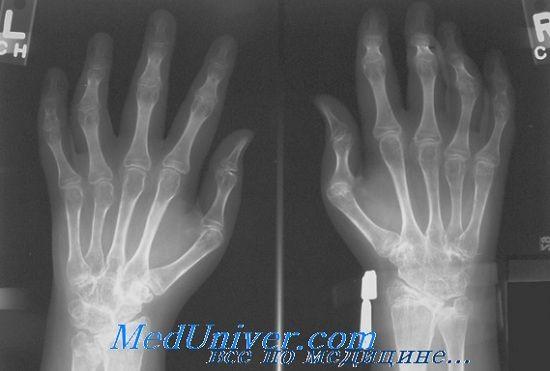Диференціація ювенільного ревматоїдного артриту у дітей