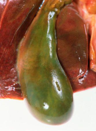 Панкреатит і дискінезія жовчовивідних шляхів