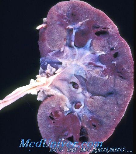 Дисплазія і гіпоплазія нирок у дітей. Мультикістоз нирки