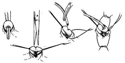 Після виділення вени з підшкірної клітковини її піднімають гемостатом (кровоспинний затиск) і відтягують лигатурами. У стінці судини роблять V-подібний розріз і встановлюють канюлю. Для попередження кровотечі можна зав`язати лігатуру або накласти пов`язку, що давить.