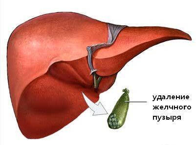 Гастродуоденіт після видалення жовчного міхура
