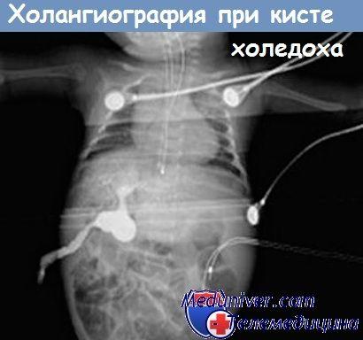 Гіпоплазія жовчних проток і кіста загальної жовчної протоки у новонароджених дітей