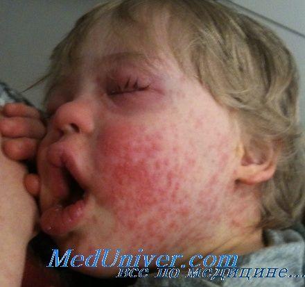 Глюкокортикоїди при алергічних реакціях. Модулятори лейкотрієнів при алергіях