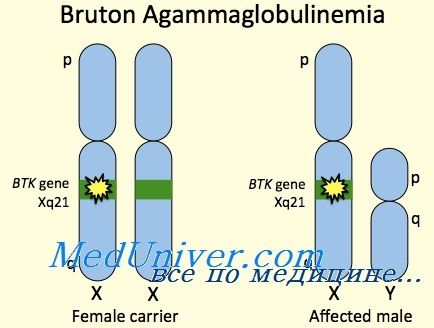 х-зчеплення агаммаглобулінемії