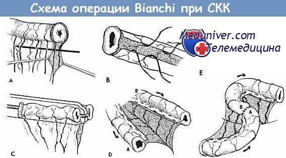 Схема операції Bianchi при синдромі короткої кишки (СКК)