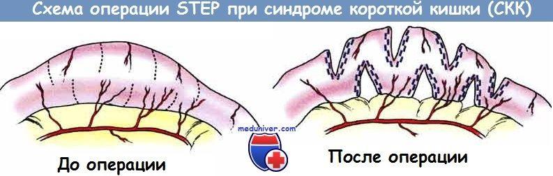 Схема операції STEP при синдромі короткої кишки (СКК)