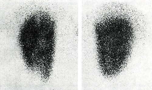 Технеціум-99-сканування