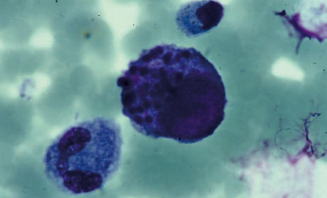 цитомегаловірусний коліт
