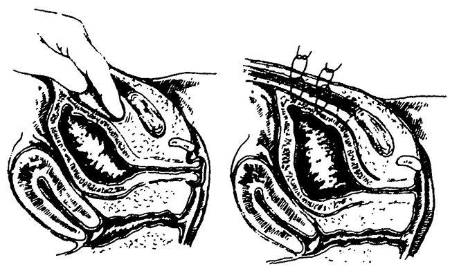 Фіксація сечового міхура при випаданні слизової оболонки сечівника по Чухриенко - Люлько