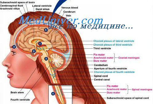 Причини набряку соска зорового нерва. Причини гідроцефалії