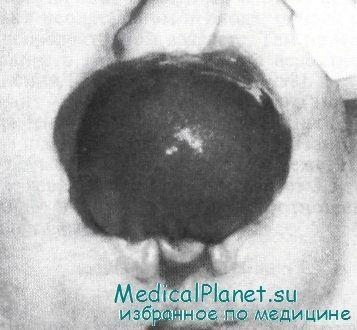 Екстрофія сечового міхура у дітей. Діагностика та лікування