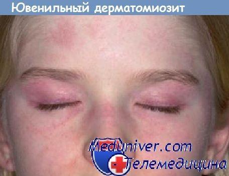 Ювенільний дерматоміозит. Причина