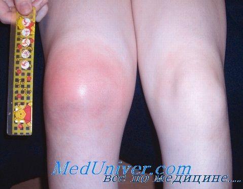 Ювенільний ревматоїдний артрит. Причини