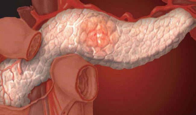 Який буває панкреатит?