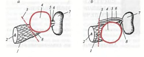 Схеми двох методик резекції хвоста підшлункової залози разом з кістою