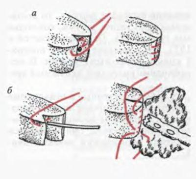 Схема укриття кукси (проксимального кінця) підшлункової залози