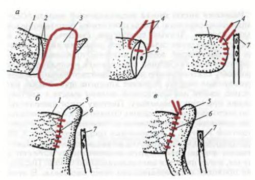 Клиновидное висічення кісти хвоста підшлункової залози