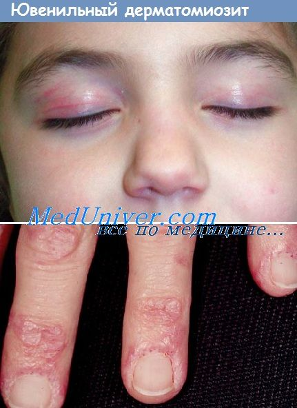 Клініка і ознаки ювенільного дерматоміозиту