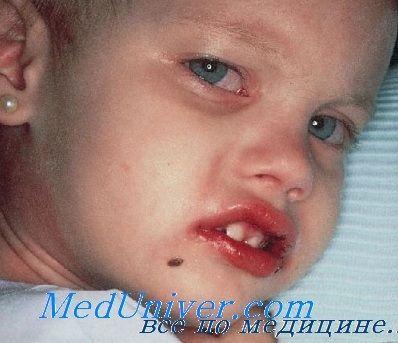 Лікування хвороби кавасакі у дітей. Прогноз