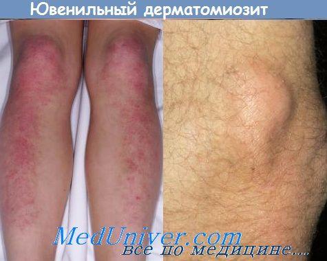 Лікування ювенільного дерматоміозиту. Прогноз