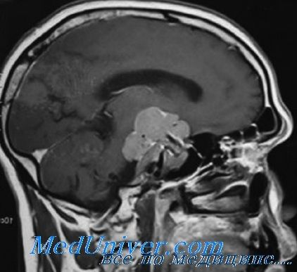 Лікування пролактиноми. Ліки і операція