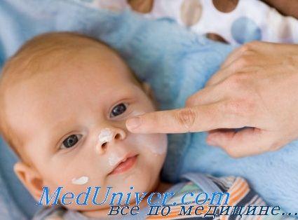 Місцеве лікування атопічного дифузного нейродерміту у дітей