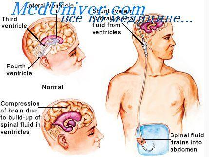 Метаболізм мозку. Регуляція метаболізму мозку