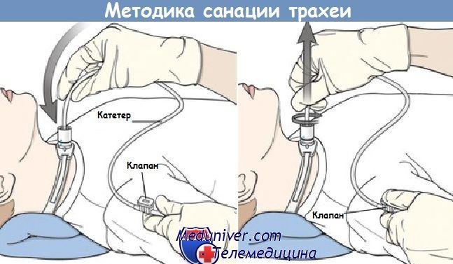 Методика санації трахеї