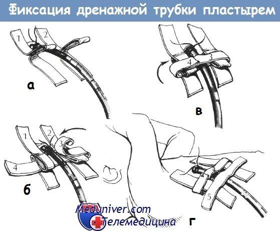 Фіксація дренажної трубки плевральної порожнини