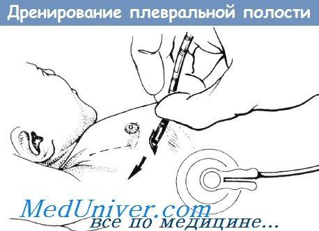 Дренування плевральної порожнини у новонародженої дитини