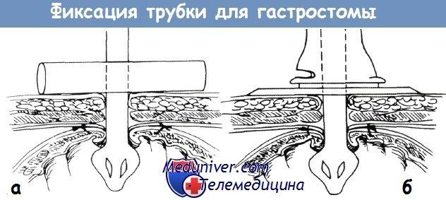 Фіксація трубки для гастростоми