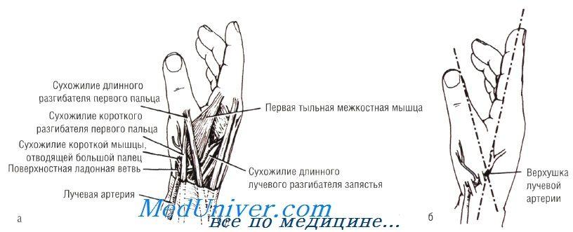 катетеризація променевої артерії