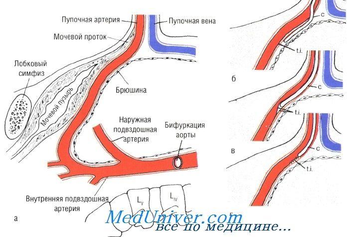 катетеризація пупкової артерії