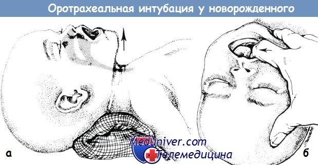 Оротрахеальная інтубація у новонародженого