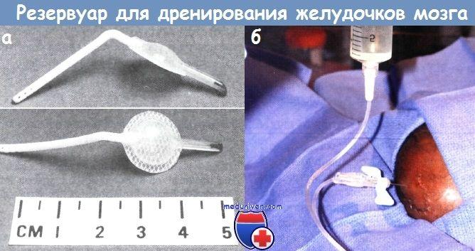 Резервуар для дренування шлуночків мозку