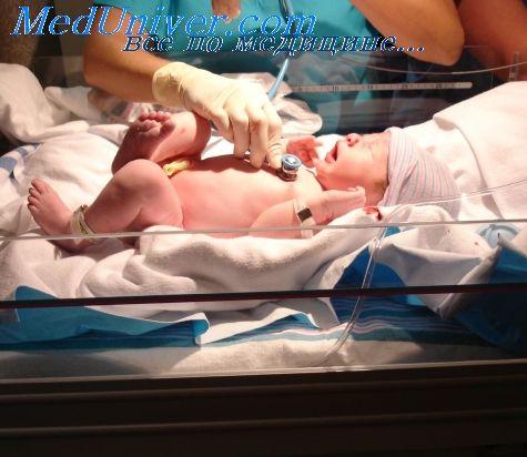 пункція вени новонародженого