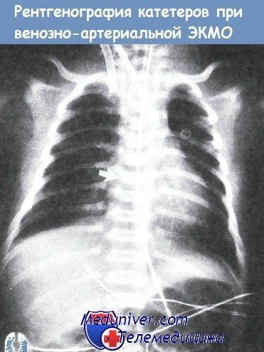 Рентгенографія катетерів при венозно-артеріальний ЕКМО