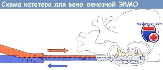 Схема катетера для віно-венозної ЕКМО