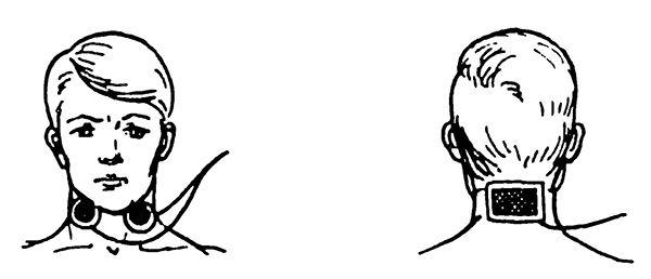Гальванізація та електрофорез області мигдалин