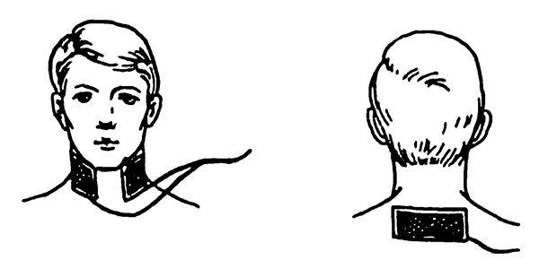 Гальванізація та електрофорез області шийних симпатичних вузлів